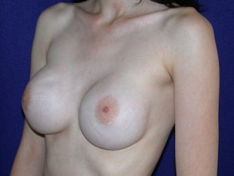 35 Year Old Female, Breast Implant Removal, No Breast Lift  1166111