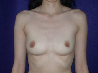 35 Year Old Female, Breast Implant Removal, No Breast Lift  after 1166111