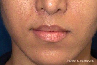 Lip Lift after 99428