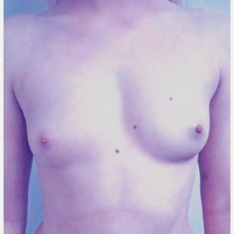 22 year old woman treated with Breast Augmentation before 1981539