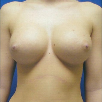 22 year old woman treated with Breast Augmentation after 1981539