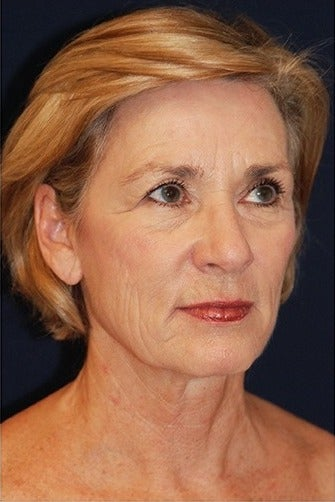55-64 year old woman treated for SMAS Facelift before 1534570