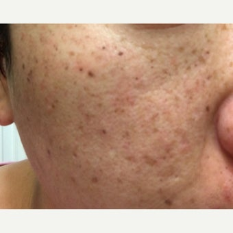 25-34 year old woman treated with Sun Spots/Freckles/Acne dark scar Treatment before 2235615