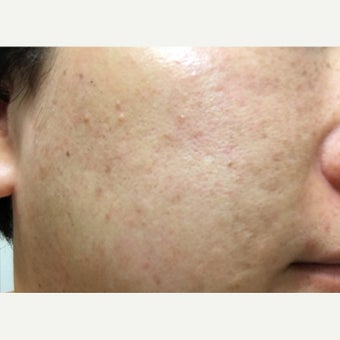 25-34 year old woman treated with Sun Spots/Freckles/Acne dark scar Treatment after 2235615