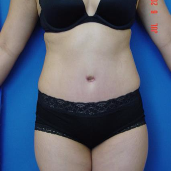 45-54 year old woman treated with Tummy Tuck after 3287735