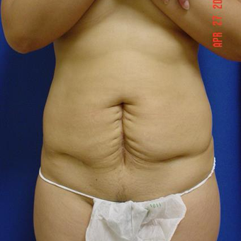 45-54 year old woman treated with Tummy Tuck before 3287735