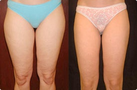 Smart Lipo: Inner Thigh Area