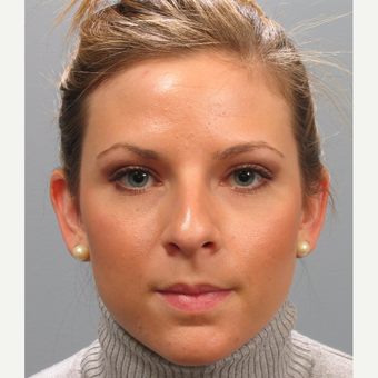 25-34 year old woman treated with Rhinoplasty before 3410831
