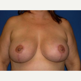 35-44 year old woman treated with Breast Lift with Implants after 3009122