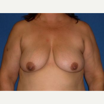 35-44 year old woman treated with Breast Lift with Implants before 3009122