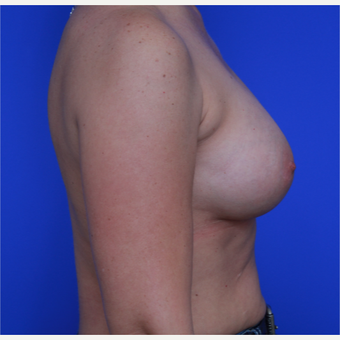 44- year old woman treated with Breast Implants after 3124400