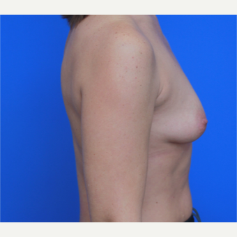 44- year old woman treated with Breast Implants before 3124400