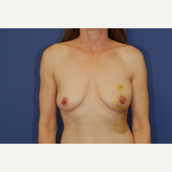 35-44 year old woman treated with Breast Reconstruction before 3619187
