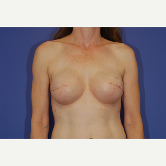 35-44 year old woman treated with Breast Reconstruction after 3619187