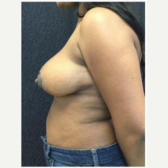 45-54 year old woman treated with Breast Reduction after 3219521