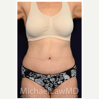 45-54 year old woman treated with Tummy Tuck after 3070910
