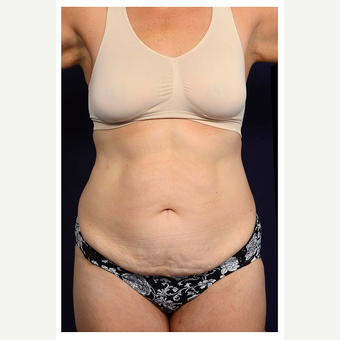 45-54 year old woman treated with Tummy Tuck before 3070910