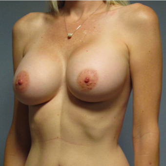 Breast Implants after 3033345