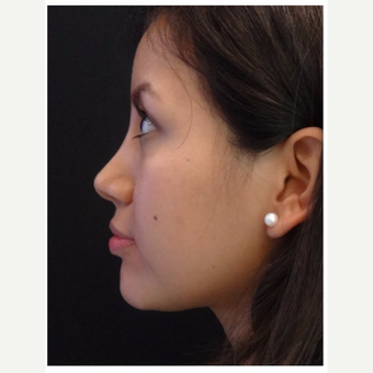 25-34 year old woman treated with Rhinoplasty after 3047059