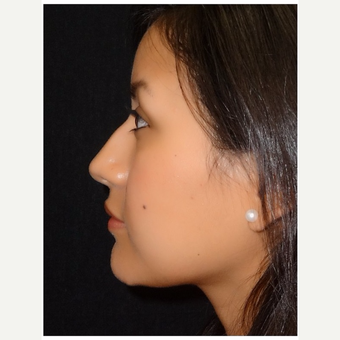 25-34 year old woman treated with Rhinoplasty before 3047059