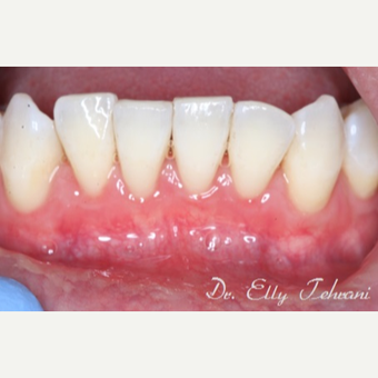 Gingival Graft using Alloderm after 2857236