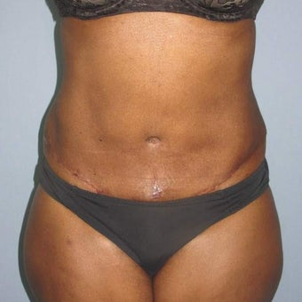 Tummy Tuck after 2575563