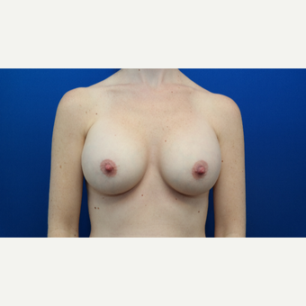 25-34 year old woman treated with Breast Augmentation after 3103871