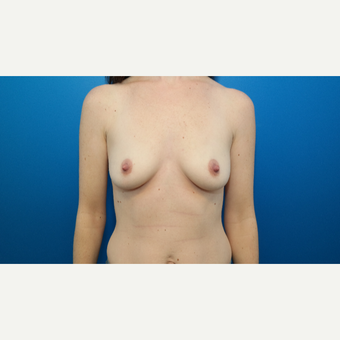 25-34 year old woman treated with Breast Augmentation before 3103871