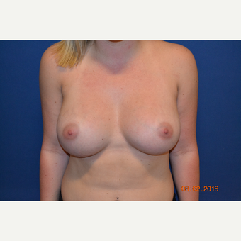 18-24 year old woman treated with Breast Augmentation after 3423497