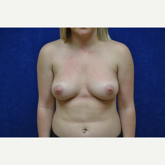18-24 year old woman treated with Breast Augmentation before 3423497