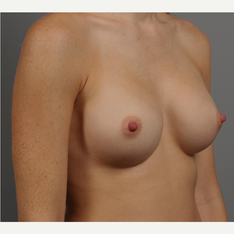 25-34 year old woman treated with Breast Implants after 3344451