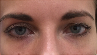 25-34 year old woman treated with Restylane after 3367471