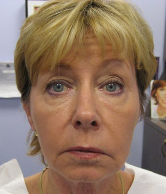 Full face rejuvenation with Botox, dermal fillers and laser after 1328588