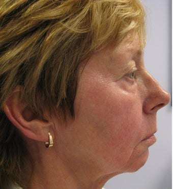 Full face rejuvenation with Botox, dermal fillers and laser 1328588