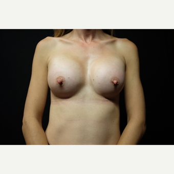35-44 year old woman treated with Breast Implants after 3724551