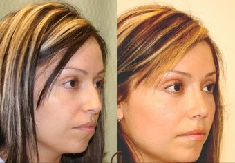 Natural Rhinoplasty  after 251847