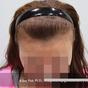 25-34 year old woman treated with Forehead Reduction before 2020514