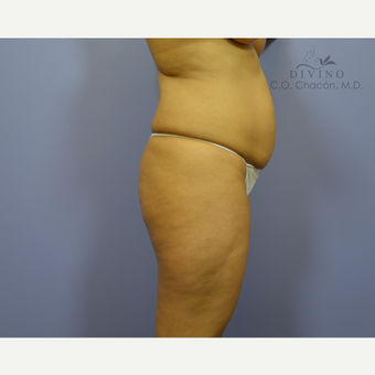35-44 year old woman treated with Brazilian Butt Lift before 3329255