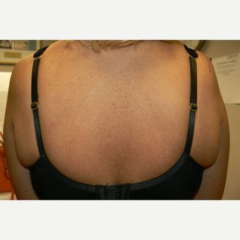 45-54 year old woman treated with Exilis before 3528660