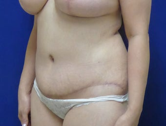 44 y.o. female–Mommy Makeover, Breast Lift w/ Silicone Style 15 421cc & Abdominoplasty (Tummy Tuck) after 3089178