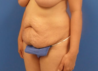 44 y.o. female–Mommy Makeover, Breast Lift w/ Silicone Style 15 421cc & Abdominoplasty (Tummy Tuck) before 3089178