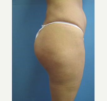 25-34 year old woman treated with Butt Lift after 3762716
