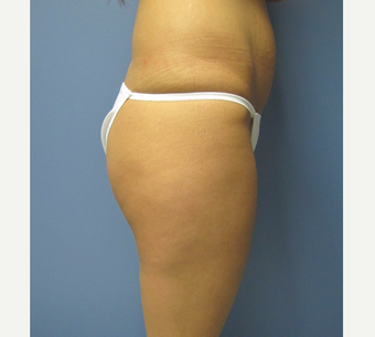 25-34 year old woman treated with Butt Lift before 3762716