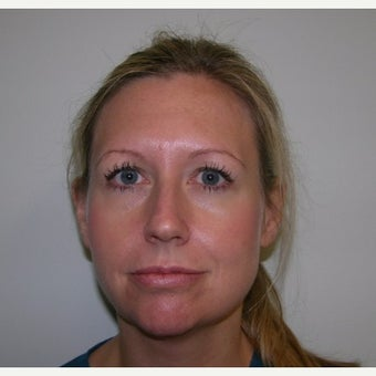 35-44 year old woman treated with Kybella after 2252517