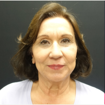 65-74 year old woman treated with SMAS Facelift before 3244954
