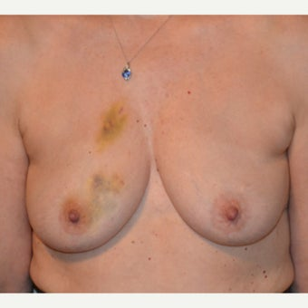 55-64 year old woman treated with Breast Reconstruction before 2021171