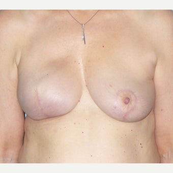 55-64 year old woman treated with Breast Reconstruction after 2021171