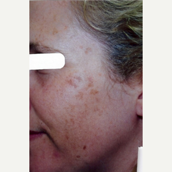 Age Spots Treatment Female before 3213508