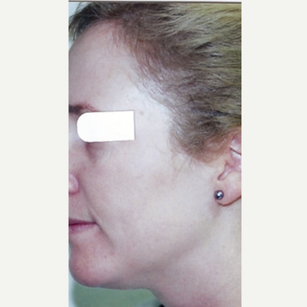 Age Spots Treatment Female after 3213508