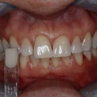 35-44 year old woman treated with Teeth Whitening after 3134866